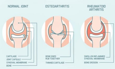The two faces of arthritis